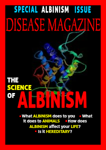 Albinism April 29, 2013