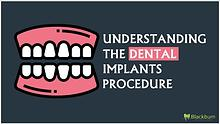 Understanding The Dental Implants Procedure