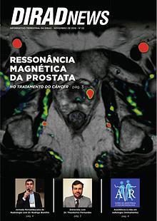DIRAD NEWS - Ressonância Magnética da Próstata - nº2