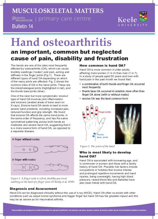 14: Hand Osteoarthritis
