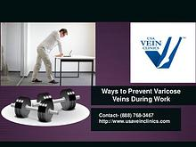 Ways to Prevent Varicose Veins During Work