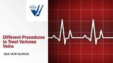 Varicose Veins Treatment Procedures - USA Vein Clinics