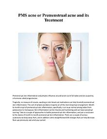 PMS acne or Premenstrual acne and its Treatment