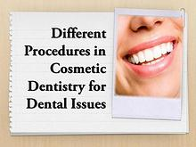Different Procedures in Cosmetic Dentistry for Dental Issues