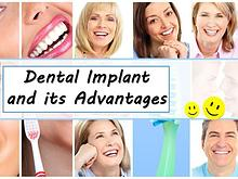 Dental Implant and its Advantages