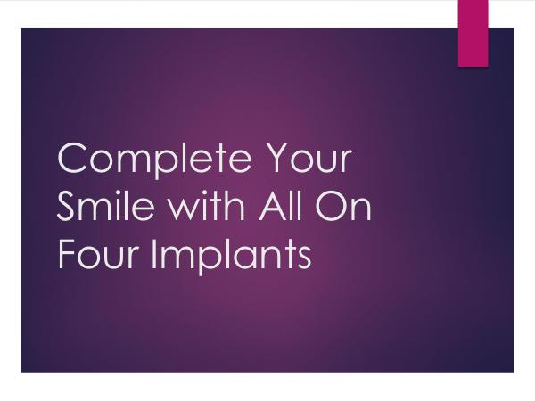 ART Dentistry Complete Your Smile with All On Four Implants