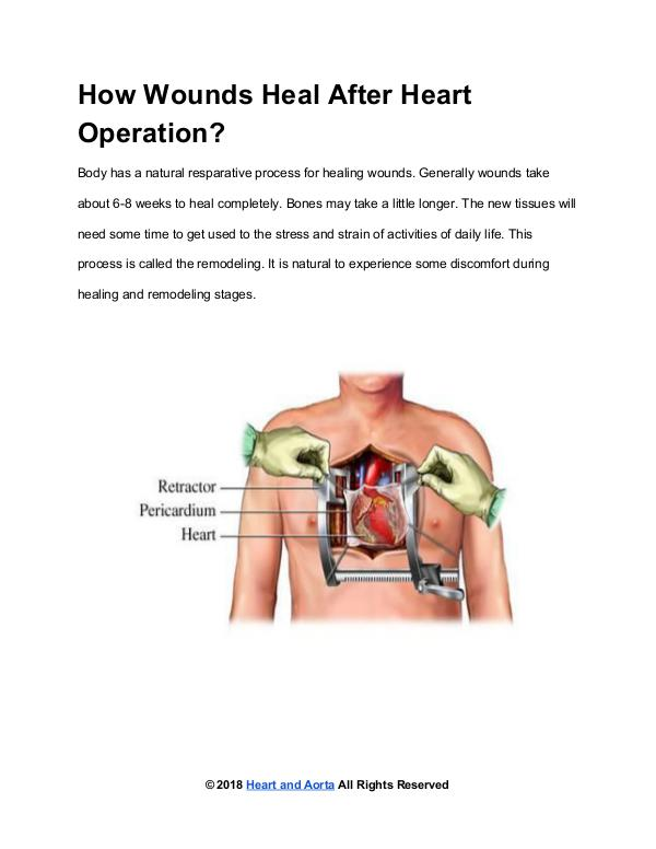 Heart and Aorta How Wounds Heal After Heart Operation?