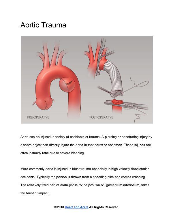 Aortic Trauma
