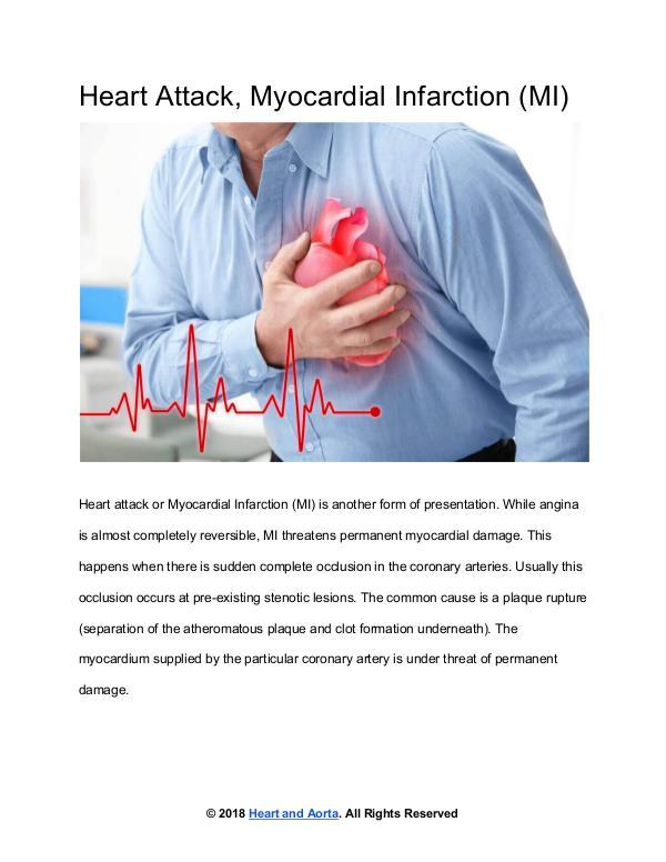 Heart and Aorta Heart Attack or Myocardial Infarction (MI)