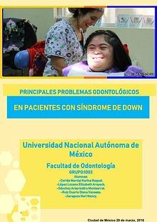 Problemas odontológicos en pacientes con síndrome de down