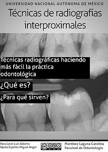 Radiografía interproximal