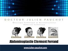 abdominoplastie clermont ferrand